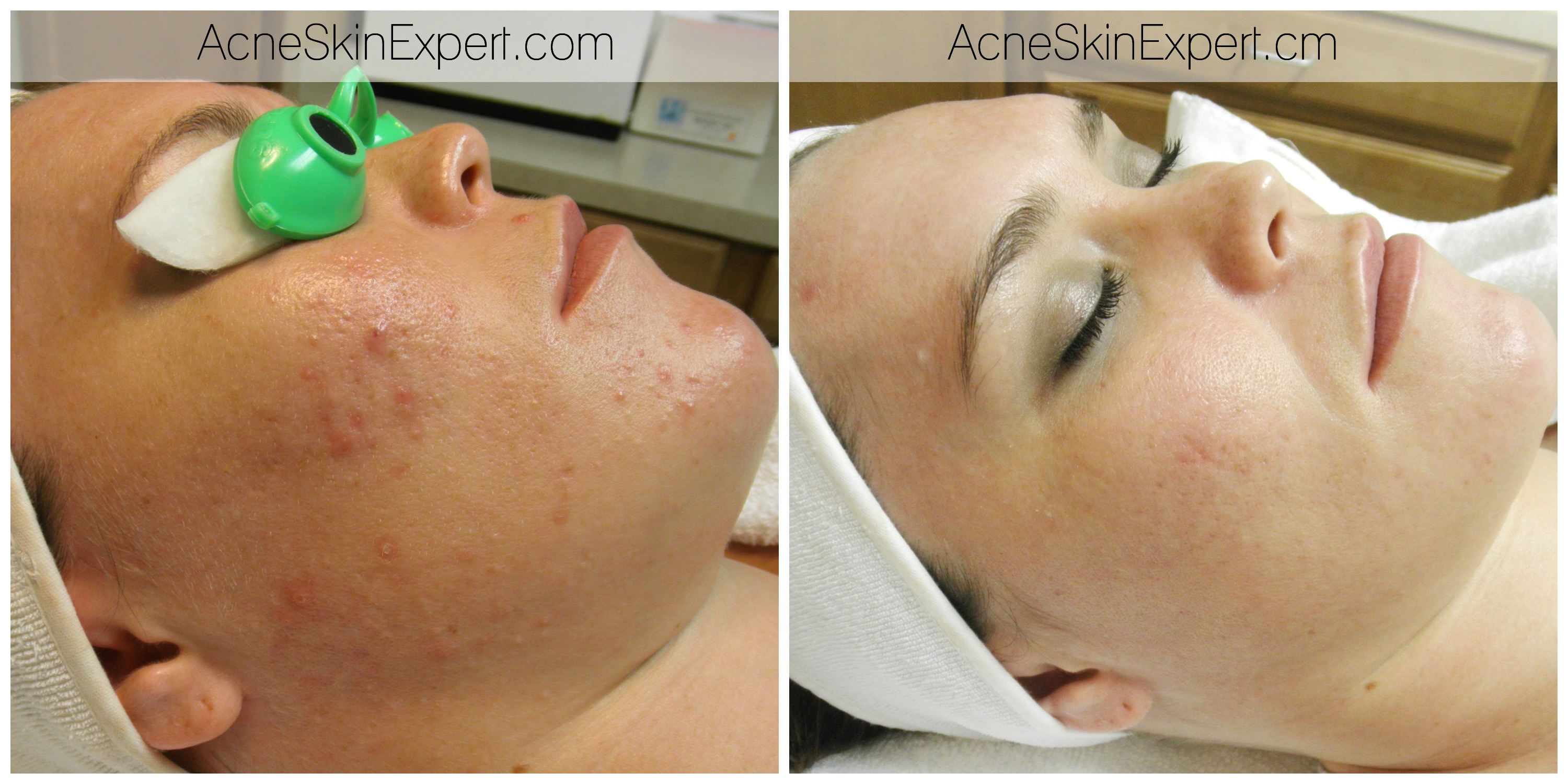 acne-treatment-oily-combination-AcneSkinExpert.com