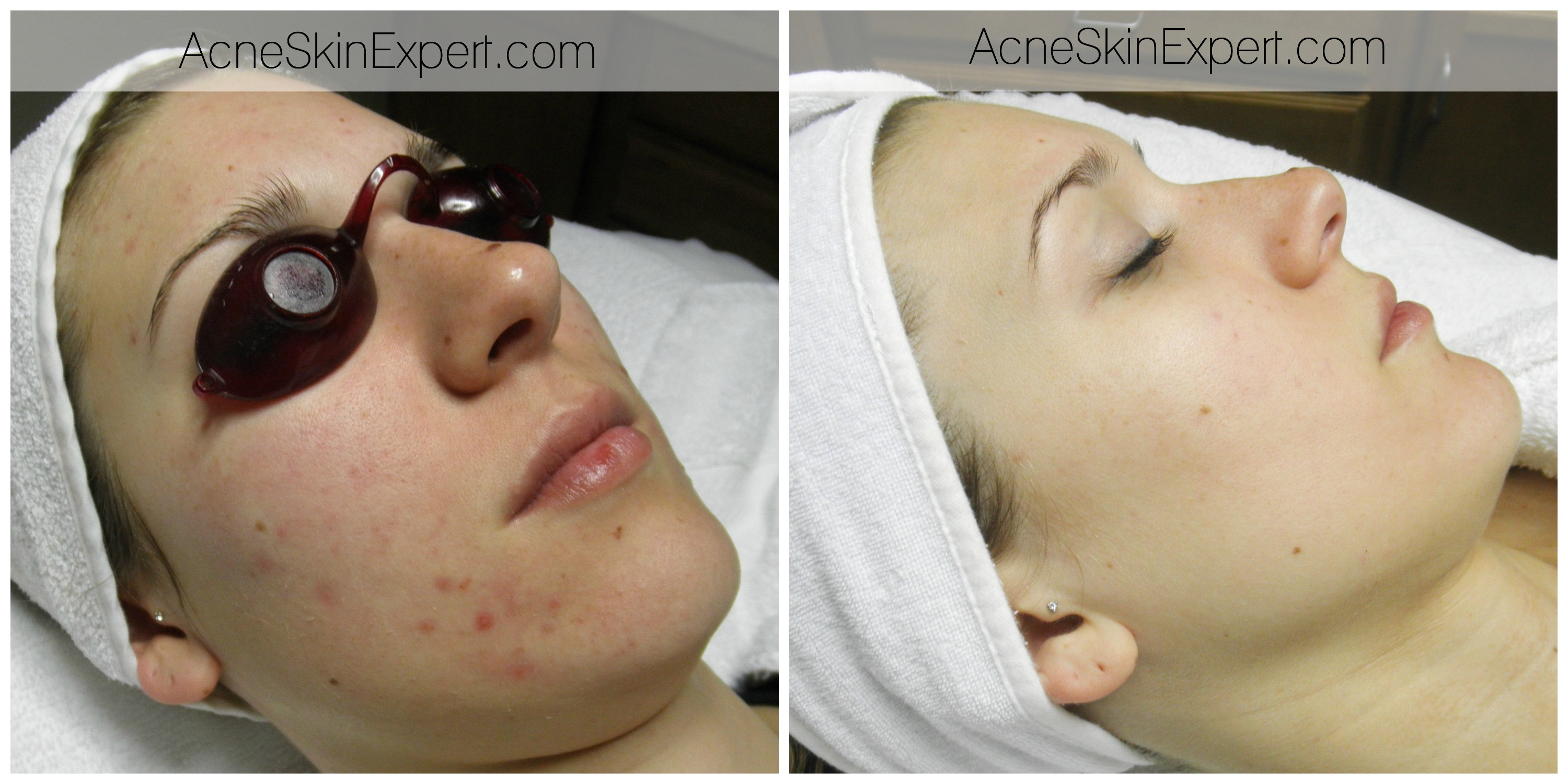acne-sensitive-skin-treatment-AcneSkinExpert.com