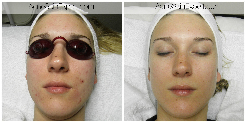 acne-sensitive-skin-treatment-AcneSkinExpert.com