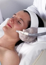 microdermabrasion acne