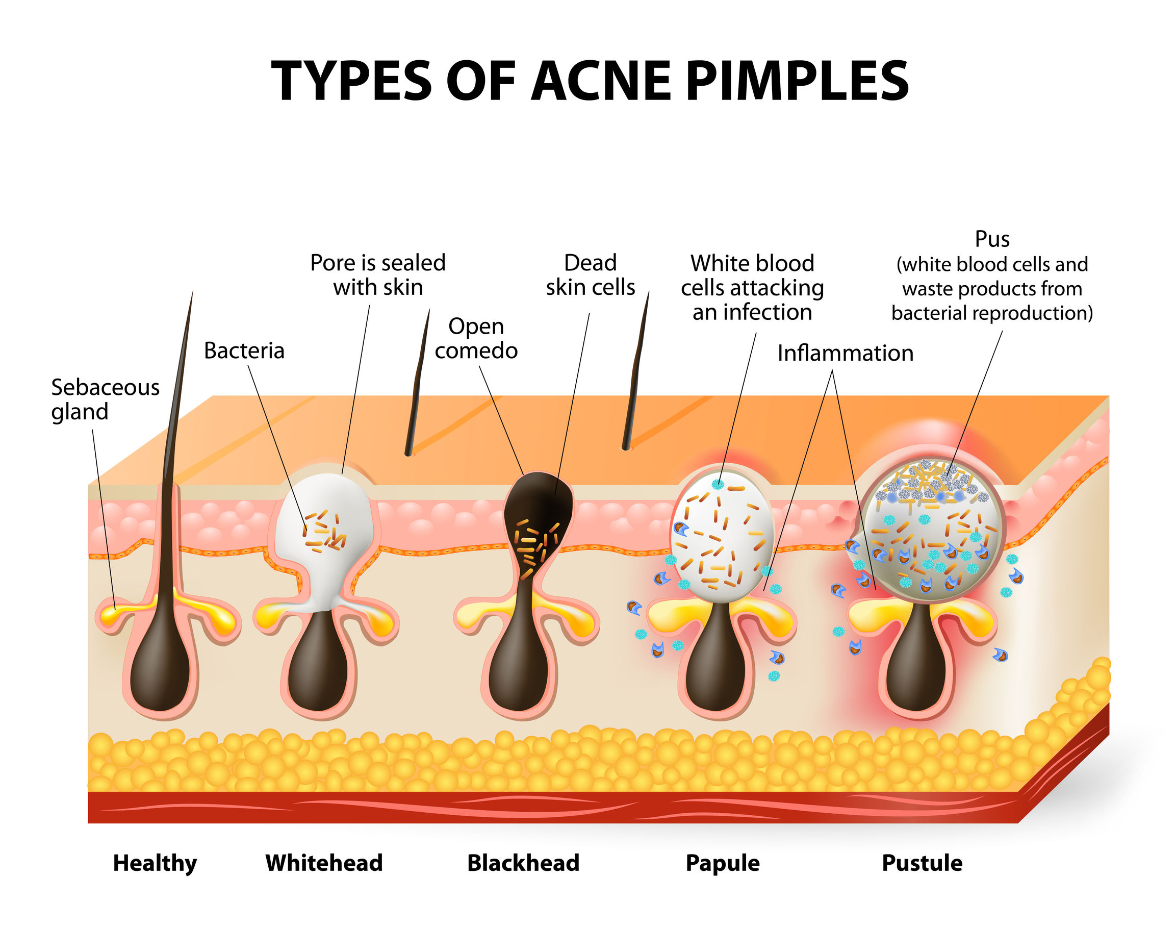 what is acne bumps