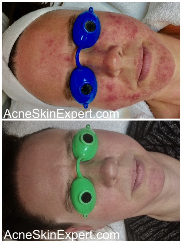 inflamed-acne-skin-treatment-AcneSkinExpert.com