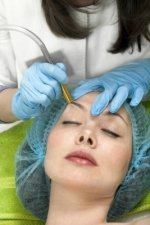 microdermabrasion acne treatment